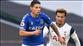 Everton'a James Rodriguez'den kötü haber