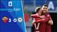 ÖZET | Roma 3-0 Udinese
